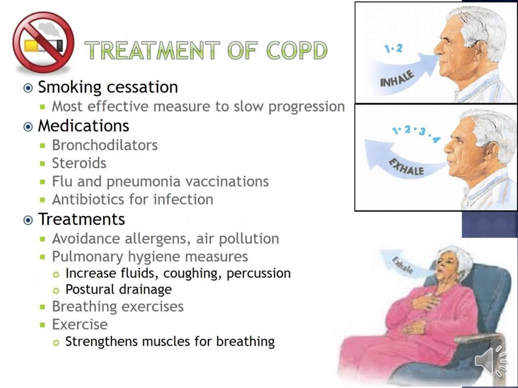 Pulmonary Hygiene for Easier Breathing